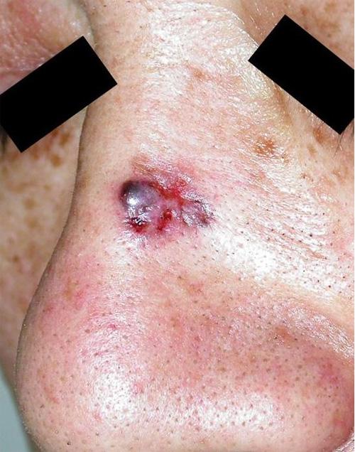 図1.鼻の背に生じた基底細胞がん