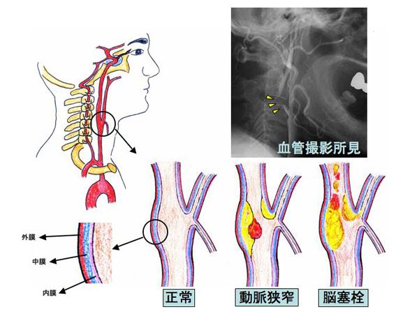頸 動脈 狭窄 症 内