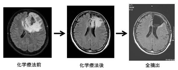 悪性 神経 膠 腫
