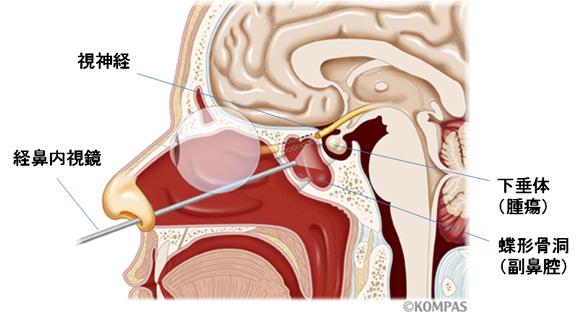 経鼻内視鏡手術