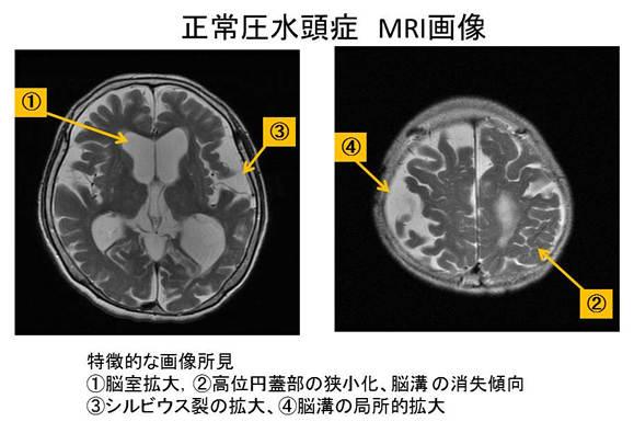 正常圧水頭症 MRI画像