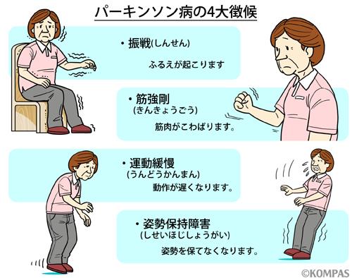 パーキンソン病 慶應義塾大学病...