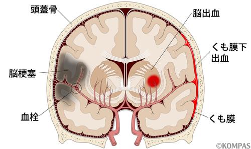 脳卒中 脳卒中は、脳梗塞(のうこうそく)、脳出血、くも膜下出血に分けられます。... 脳卒中|慶