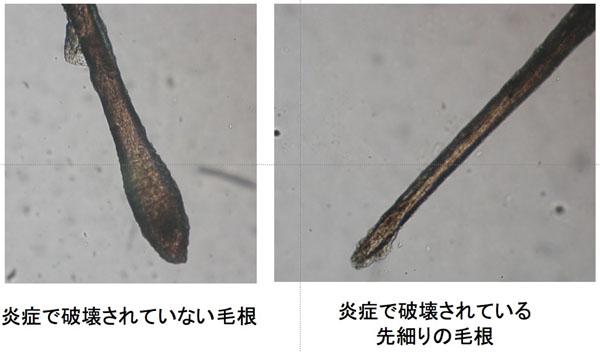 図2.正常な毛根と炎症で破壊されている毛根との違い