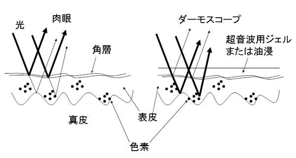 図1.ダーモスコープの原理