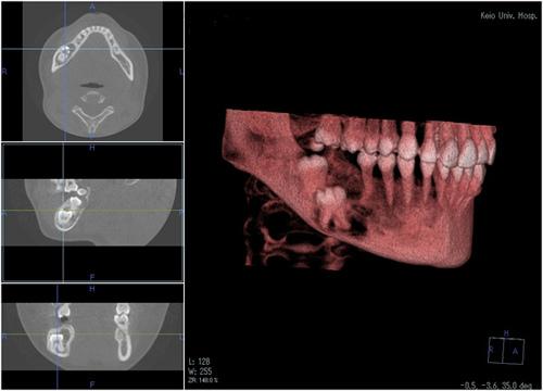 図1.cone-beam CT