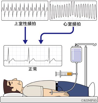 第4章 心房頻拍   不整脈といえば「東京ハートリズ …