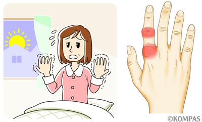 初期 関節 症状 リウマチ