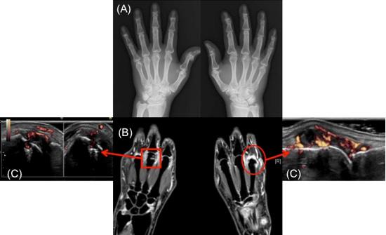 図4 関節リウマチ発症初期の関節X線(A)、MRI検査(B)、超音波検査(C):