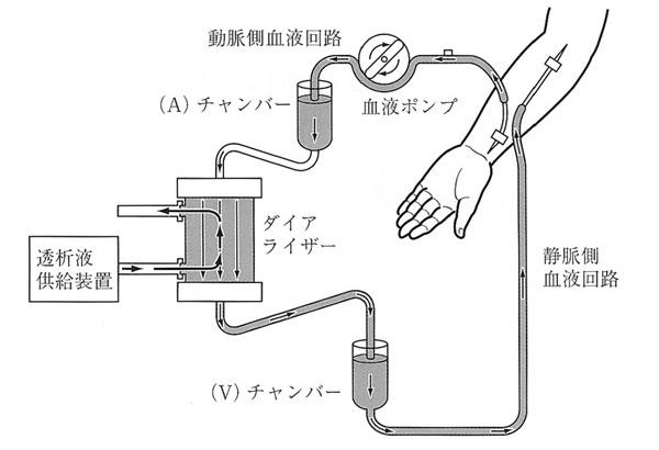 図1. 血液透析