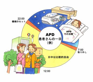 図3.APD患者さんの一日(例)
