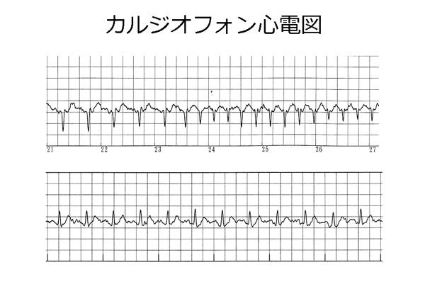 図2.カルジオフォン心電図の一例