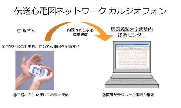 図1.伝送心電図ネットワークカルジオフォン模式図