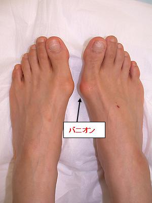 外反母趾のバニオンの一例