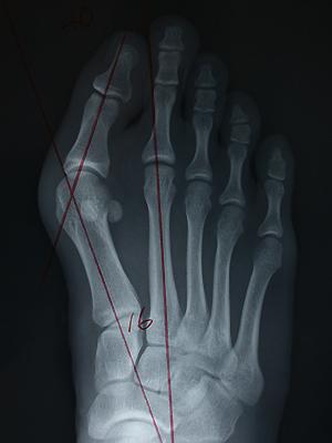 図2.外反母趾のレントゲン写真