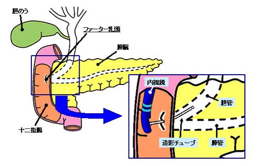 図3.ERCPの実際