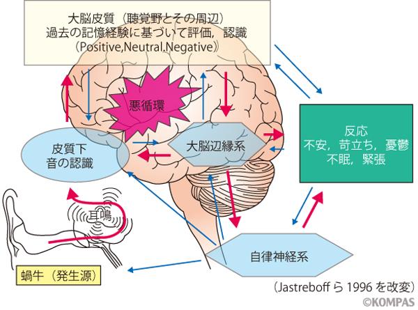 突発性難聴診断の手引き