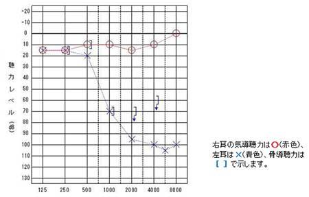 図4.標準純音聴力検査の一例