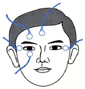 図1.電気眼振図をとるための電極