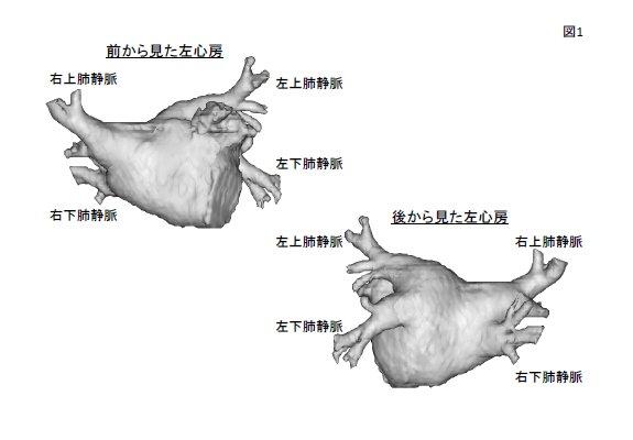 図1. CTスキャンから3次元的に作成した左心房