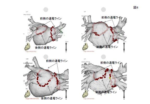 図4. 慶應病院での治療の実際