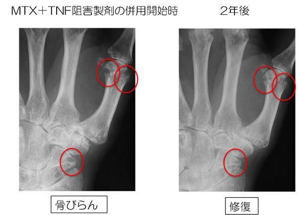 図2 赤で囲まれた骨びらんがTNF阻害剤開始2年後に修復されています