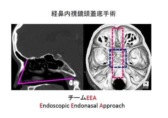 図1.経鼻内視鏡頭蓋底手術のCT図