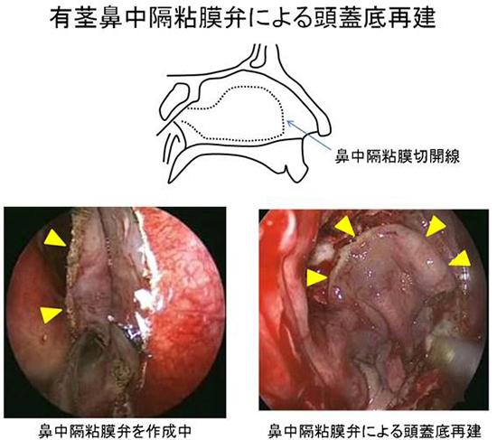 図3.有茎鼻中隔粘膜弁による頭蓋底再建