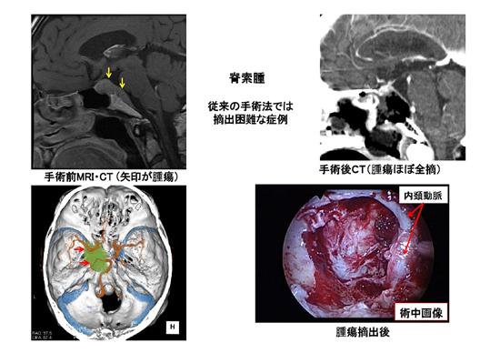 図5.脊索腫患者さんの例