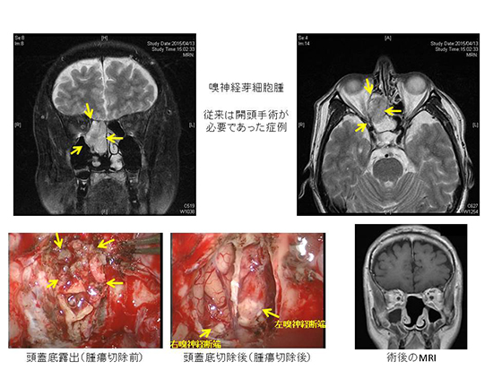 図7.嗅神経芽細胞腫の例