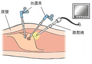 図1 腹腔鏡手術の模式図