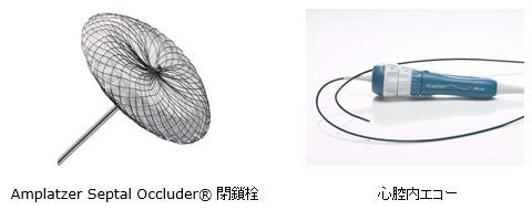 Amplatzer Septal Occluder® 閉鎖栓  心腔内エコー