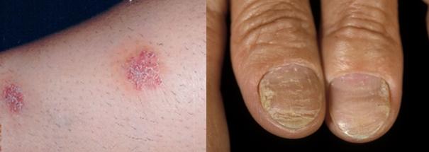 しかし乾癬ではこの時間が4,7日程度と著しく短縮しているため、皮膚が赤くなり、剥がれた皮膚の一部が白く付着するという病変を認めます。通常、皮疹に自覚症状は