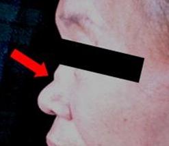 図1.鞍鼻