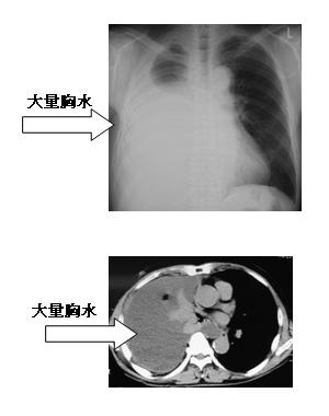 図2 胸膜中皮腫のレントゲン写真とCT写真(胸水貯留例)