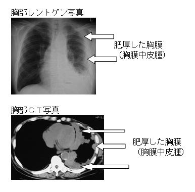 図3 胸膜中皮腫のレントゲン写真とCT写真(胸膜肥厚例)