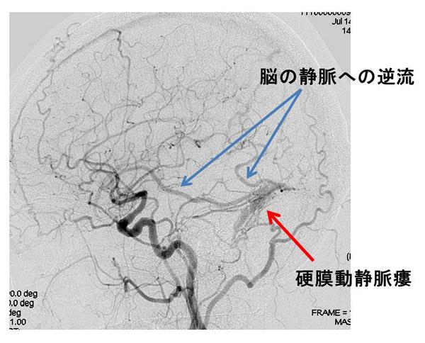 図2 治療が必要と判断された例