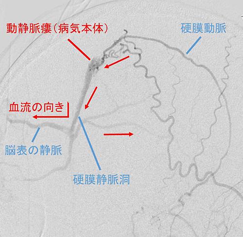 硬膜動静脈瘻|慶應義塾大学病院...