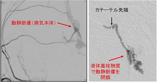 図3 硬膜動静脈瘻の経動脈的塞栓術の例