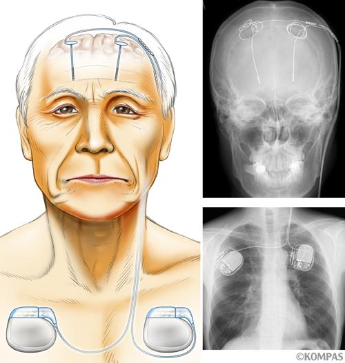 図1.脳深部刺激療法