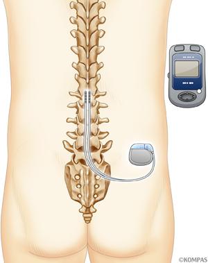 図2.脊髄刺激療法