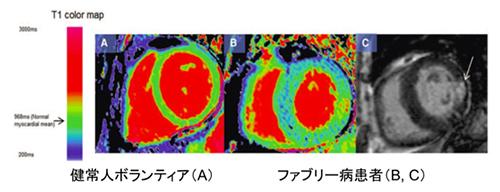 図4. ファブリー病の心臓MRI所見