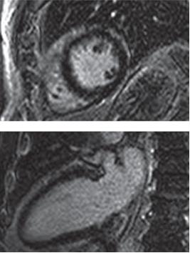 図2.心アミロイドーシスのMRI像