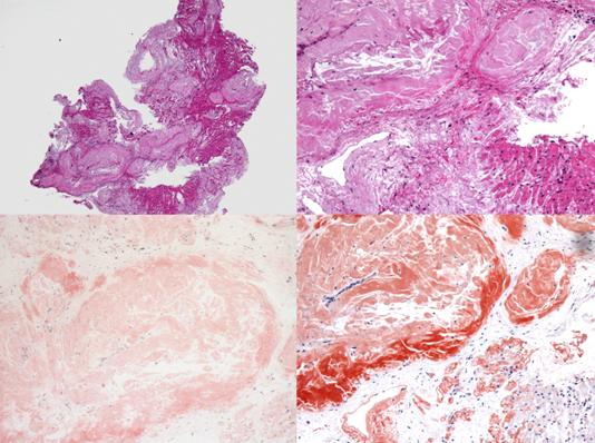 図3.心アミロイドーシスの病理像