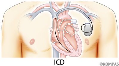 図3.植え込み型除細動器(ICD)