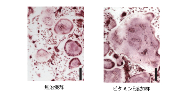 図2 ビタミンEは破骨細胞の巨大化を促進する