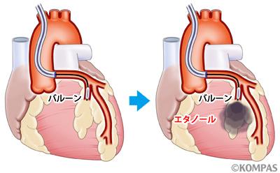 図2A 標的心筋を栄養する左冠動脈前下行枝にエタノールを注入している様子(イメージ)