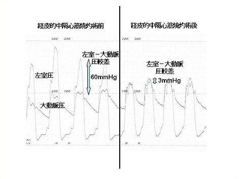 図3 当院で施行した経皮的中隔心筋焼灼術前後の左室 - 大動脈圧較差の実際