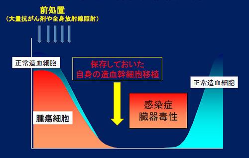 図1.自家造血幹細胞移植の流れ