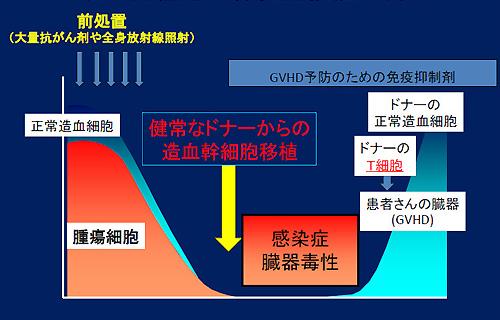 図2.同種造血幹細胞移植の流れ